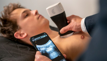 ICICS Researchers Helping to Develop Ultrasound Scanning Network for COVID-19 Diagnosis